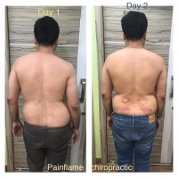 painflame chiropractic physiotherapy